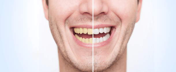 Tooth Whitening Treatment Austin