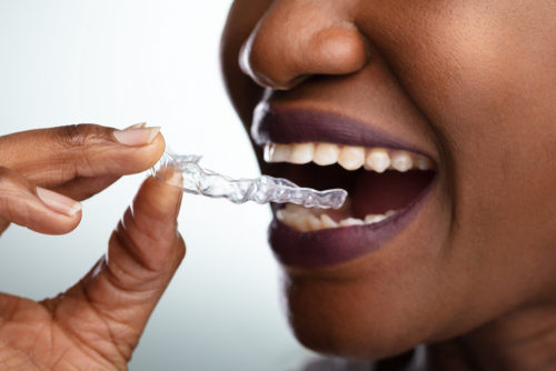 woman holds clear dental aligner