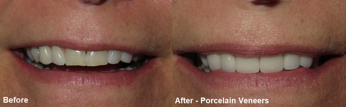 before and after porcelain veneers